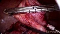 Excellent site for surgical videos. This site has many videos covering all surgical specialties. Great reference for case preps and case studies.