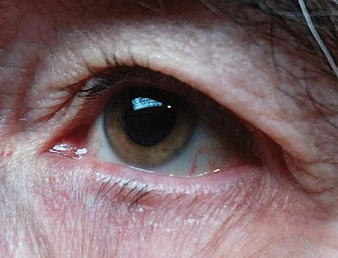 What's That Gut to Do With It? Can SIBO (small intestinal bacterial overgrowth) contribute to ocular rosacea?