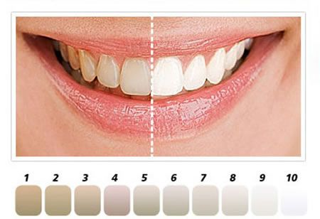 Natural teeth whitening gels