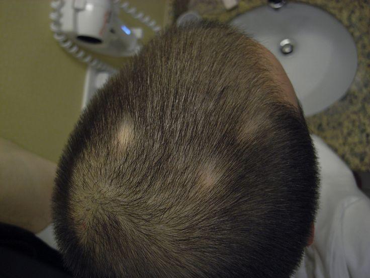 La alopecia areata es una enfermedad de la piel autoinmune común que causa la pérdida de pelo en el cuero cabelludo, la cara y ocasionalmente en otras áreas del cuerpo