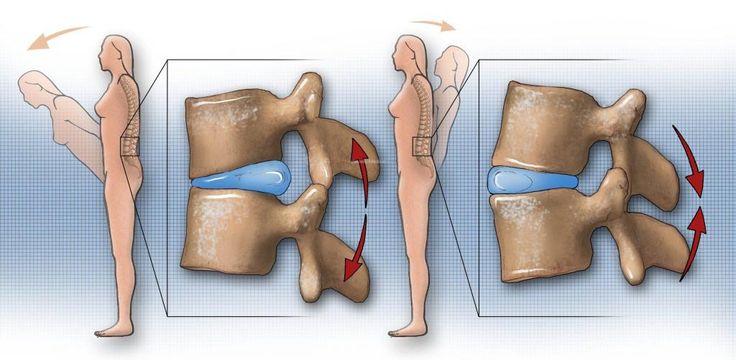 Muchos doctores, fisioterapéutas y quiroprácticos aconsejan a aquellos con diagnóstico de hernias discales evitar la flexión de la columna. La idea es simple: en la mayoría de las hernias, los discos van hacia atrás. Preparé para ti una ilustración para que entiendas el concepto más fácilmente: