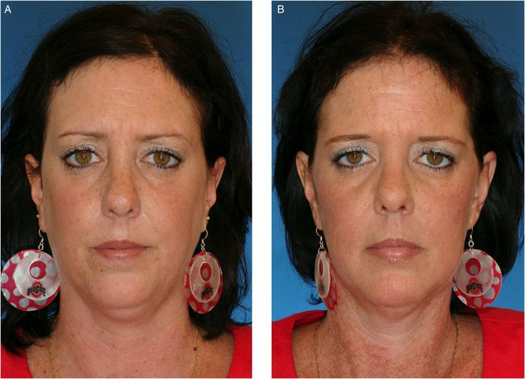 Environmental Factors That Contribute to Upper Eyelid Ptosis: A Study of Identical Twins | Aesthetic Surgery Journal