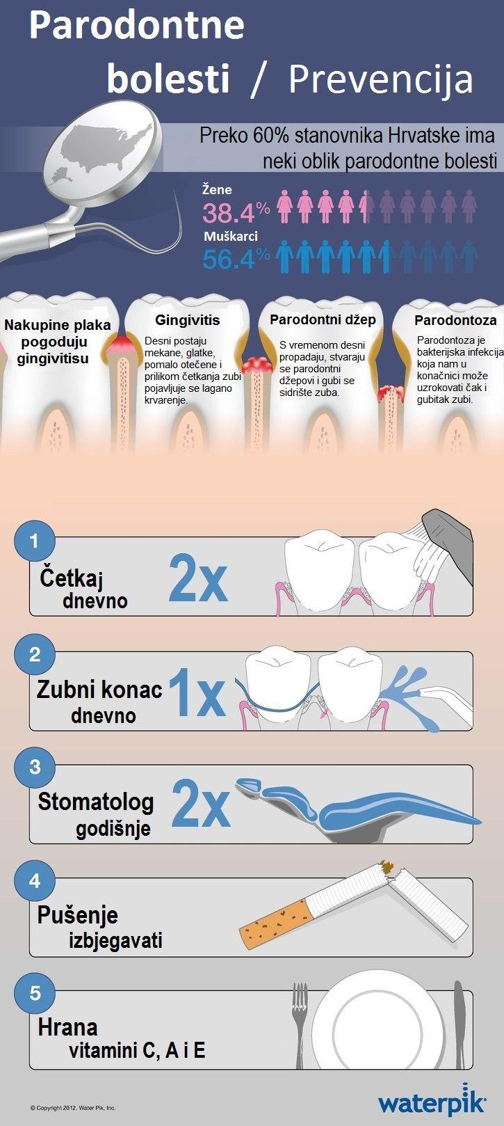 Prevencija parodontnih bolesti