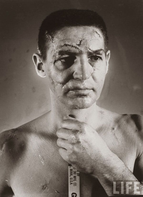 The face of a hockey goalie (Terry Sawchuk) before masks became standard game equipment, 1966.