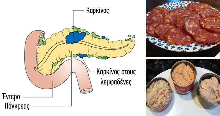 14 τροφές που έχουν αποδειχθεί ότι προκαλούν καρκίνο δεν πρέπει να ξαναβάλετε στο στόμα σας - Τι λες τώρα;