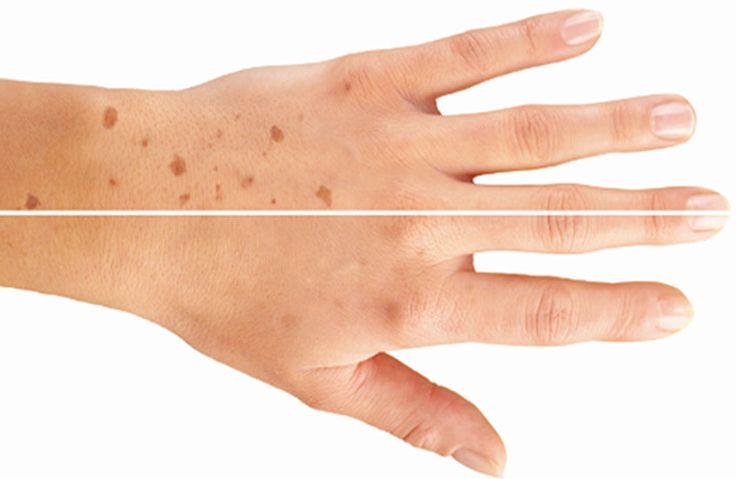 Stárnutí je přirozené. Přináší nám zkušenosti, zážitky s dětmi, později s vnoučaty, ale někdy spolu se stárnutím přicházejí i tzv. stařecké skvrny. Ty mohou být způsobené slunečním zářením, ale i hormonálními změnami. Pigmentové skvrny se objevují zejména na rukou, dekoltu a na obličeji. K je