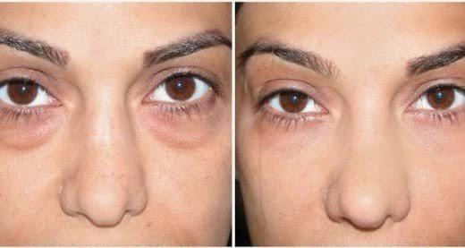 Un seul ingrédient pour nettoyer votre visage, éliminer les boutons et les cicatrices d'acné ainsi que les poches et les cernes sous vos yeux.