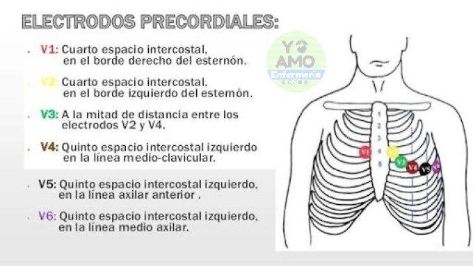 Derivaciones Periféricas Electrocardiograma Electrocardiograma Cosas De Enfermeria Notas De Enfermería