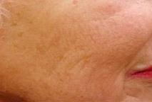 Huidverjonging : behandeling met de Palomar Fractional Laser