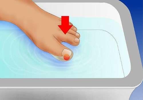 Comment bien traiter les ongles incarnés, et des remèdes maison pour soulager - Améliore ta Santé