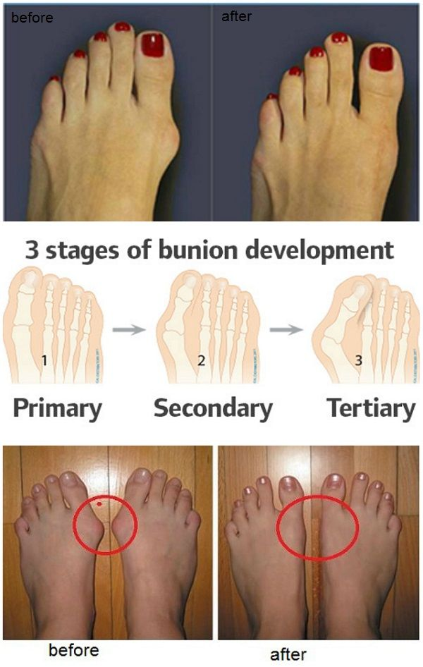 A bunion is a deformity of the great toe characterized by a lateral deviation of it. People usually confuse it with bone growth, but it's not that, it's the bones