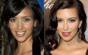 FOTOS: Kim Kardashian antes y después de las cirugías