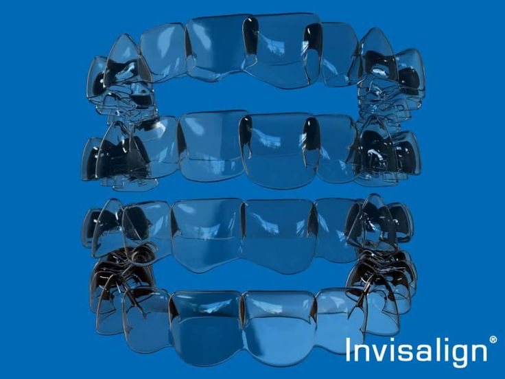 Invisalign - Invisalign is a unique orthodontic system that uses almost invisible teeth aligners to gently straighten your teeth and give you the perfect smile you have always wanted. Your aligners can be taken out at anytime such as when you eat or drink and can be left out if you have an important business meeting or social event where you want to look your best.