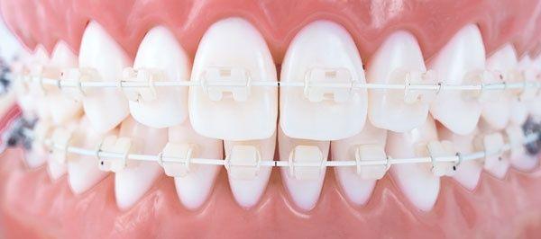 Bijna onzichtbaar is een witte, tandkleurige beugel. Betaalbaar en snel. In 6-10 maanden je tanden recht.
