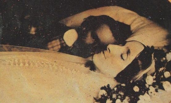 Victorian Post Mortem. Alive husband laying next to deceased wife. He loved her so much.
