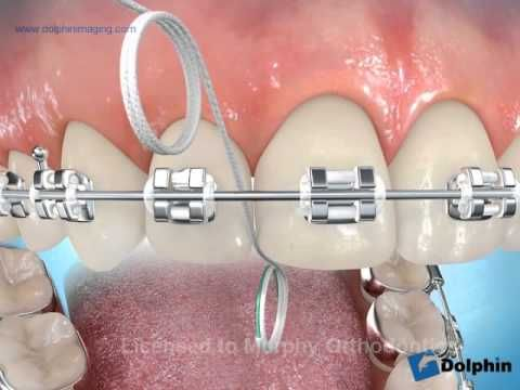 Here's a great video on flossing technique for braces.