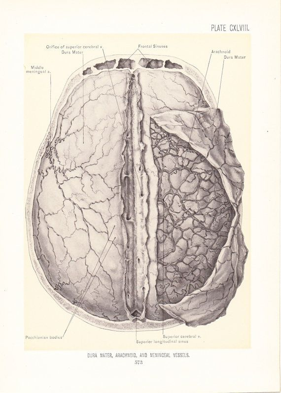1899 Human Anatomy Print - Arachnoid Dura Mater Meninceal Vessles Brain - Vintage Antique Medical Art Illustration Doctor Hospital Office on Etsy, $20.00