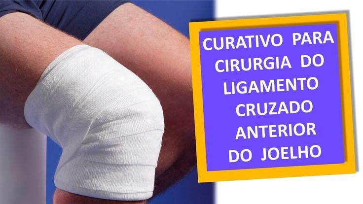 www.cirurgiadejoelho.med.br / O DR. ADRIANO KARPSTEIN, médico ortopedista especialista em Cirurgia de Joelho e Medicina Esportiva, ensina como se faz o CURATIVO DEPOIS DA CIRURGIA DO LIGAMENTO CRUZADO ANTERIOR DO JOELHO.