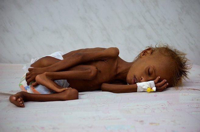 Un niño de 6 años con malnutrición posa tumbado en la cama de un hospital de la Cruz Roja en Hodaida (REUTERS).