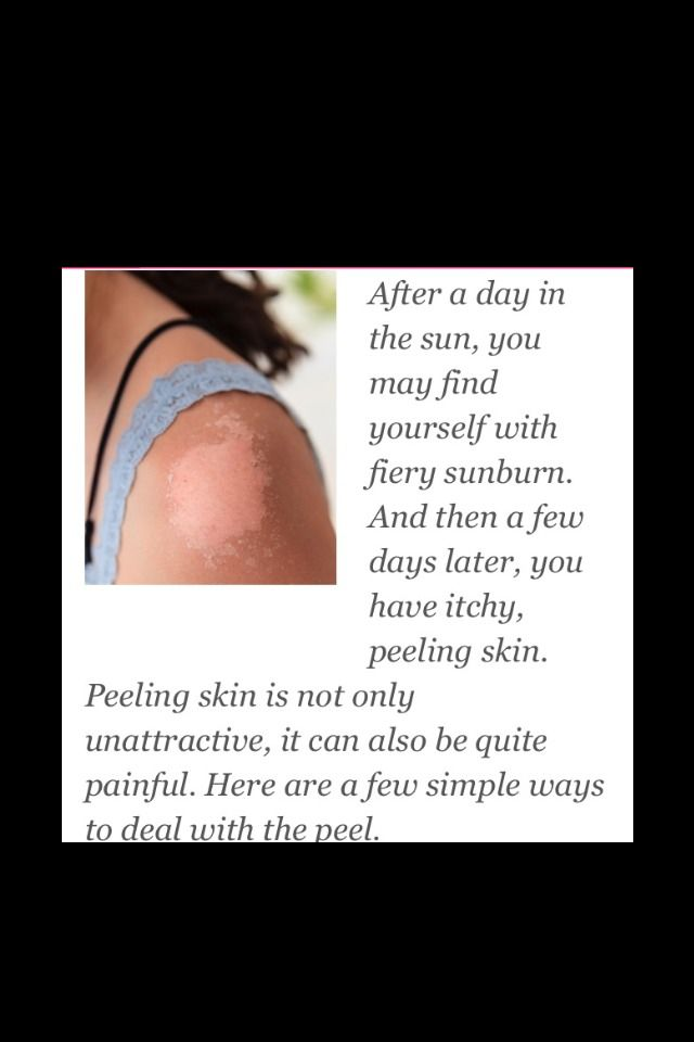 How to remove sunburn peeling without damaging skin !!!!