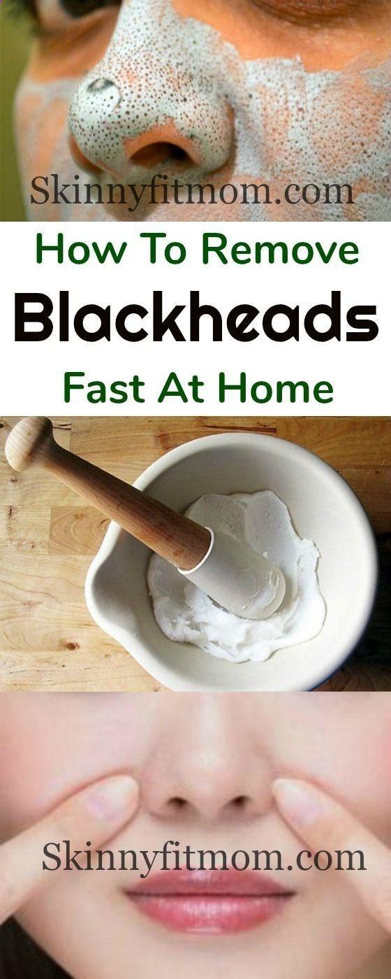 Homemade facial for blackheads #14