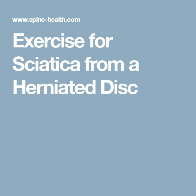Exercise for Sciatica from a Herniated Disc