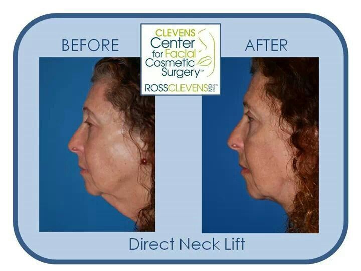 "Before and after plastic surgery ""direct neck lift"" by Dr Clevens #drclevens #su"