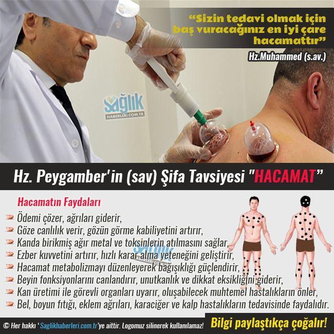 Hz. Peygamber'in (s.a.v.) Şifa Tavsiyesi: Hacamat #sağlık #saglik #sağlıkhaberleri #health #healthnews @Sa
