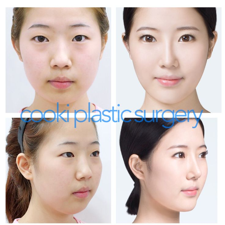 Asian girl Double eyelid (non incisional) surgery with nose job and chin implant surgery.