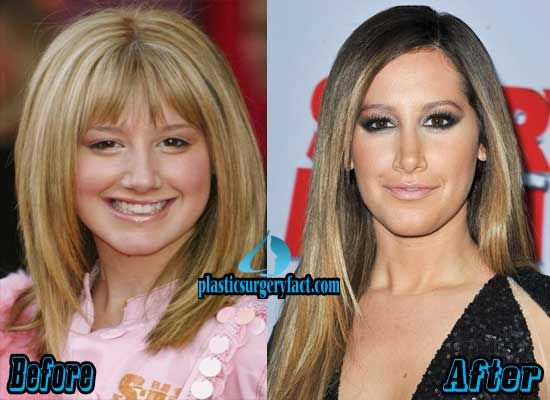 Ashley Tisdale Nose Job Before and After | http://plasticsurgeryfact.com/ashley-tisdale-nose-job-before-and-after/