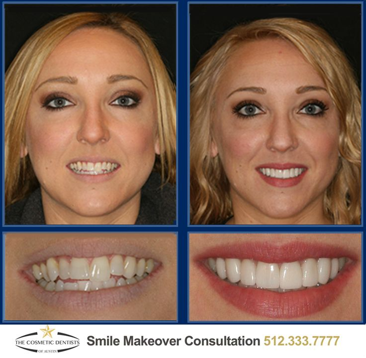 Another amazing Smile Makeover in just 2 visits without braces! #Austin #ATX #AustinCosmeticDentist #CosmeticDentitsry #AlternativetoBraces