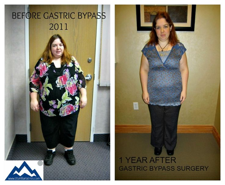 93 Best Gastric Bypass Life Images On Pinterest Weight 5025632