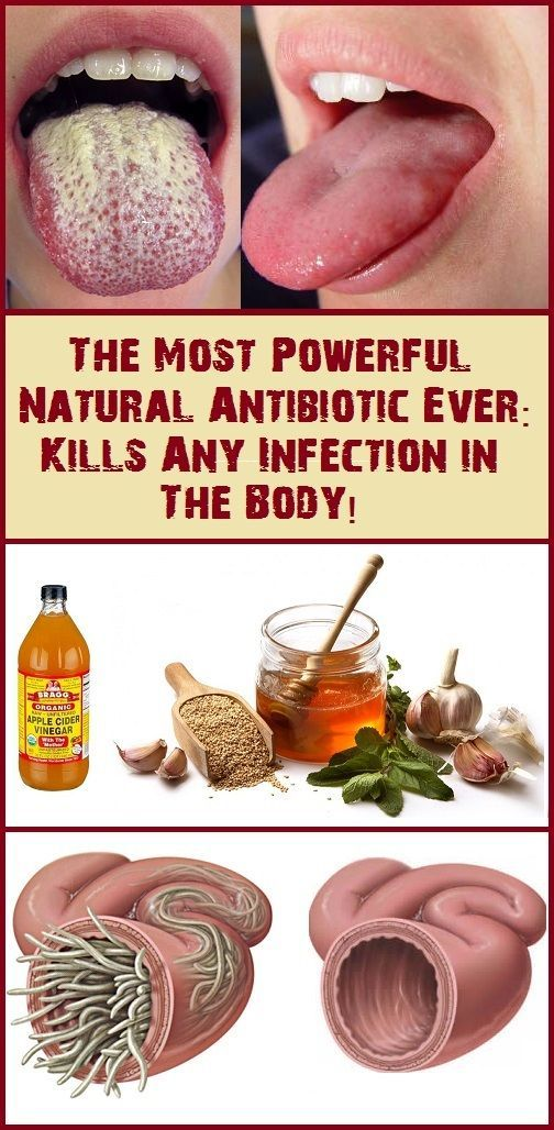 THE MOST POWERFUL NATURAL ANTIBIOTIC EVER KILLS ANY INFECTION IN THE BODY