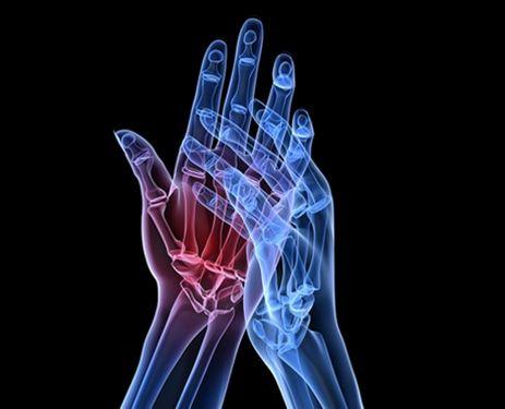 L'artrite è un insieme di condizioni che causano danni alle articolazioni. Generalmente si riferisce all'infiammazione di una o più articolazioni.