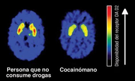 ¿Cuáles son los efectos a corto plazo de la cocaína? ¿y a largo plazo?