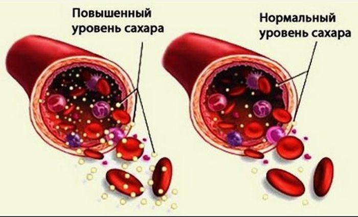 Чем можно снизить уровень сахара в крови