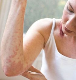 """Research Beam added a report on """"Chronic Urticaria Or Hives - Pipeline Review, H1 2015"""""""