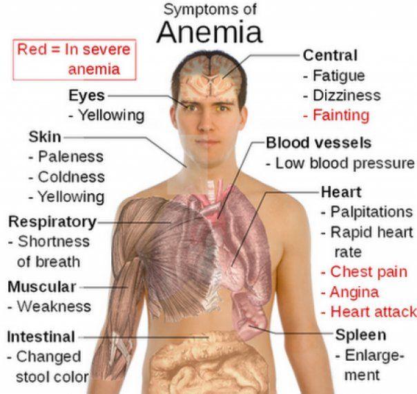 Anemia este determinata de scaderea numarului de globule rosii din sange (hematii sau eritrocite) sub valorile normale sau de modificarea lor ca forma, marime si incarcare cu hemoglobina (scaderea concentratiei de hemoglobina)....