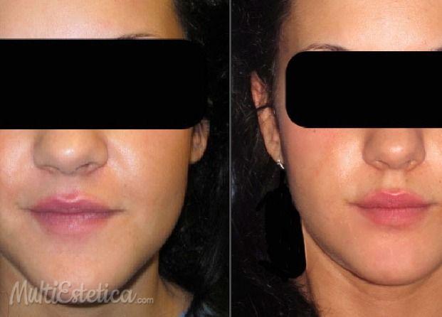 Mentoplastia de reducción http://www.multiestetica.com/cirugia-estetica-vservicios-147.html