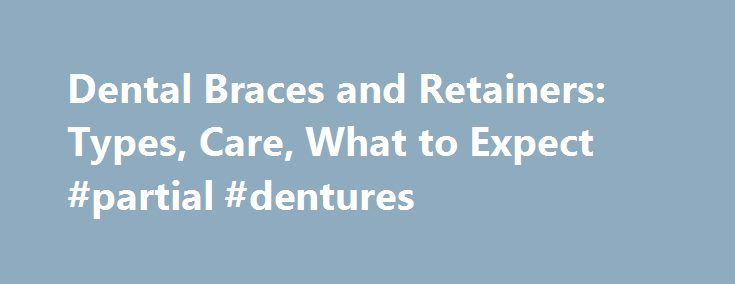 Dental Braces and Retainers: Types, Care, What to Expect #partial #dentures  #orthodontist # Dental Braces and Retainers If you have crooked teeth and/or a m http://getfreecharcoaltoothpaste.tumblr.com