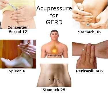 GERD/Heartburn/Acid-reflux acupressure points