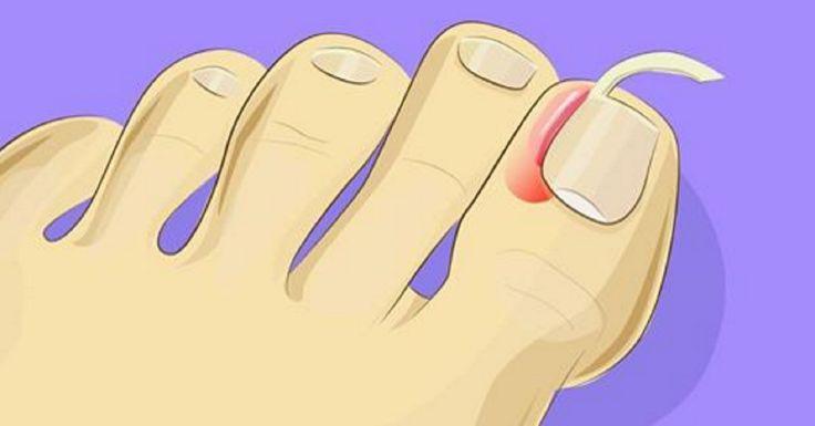 Mira lo fácil que es tratar las uñas encarnadas en casa. Sin tener que recurrir a una cirugía.