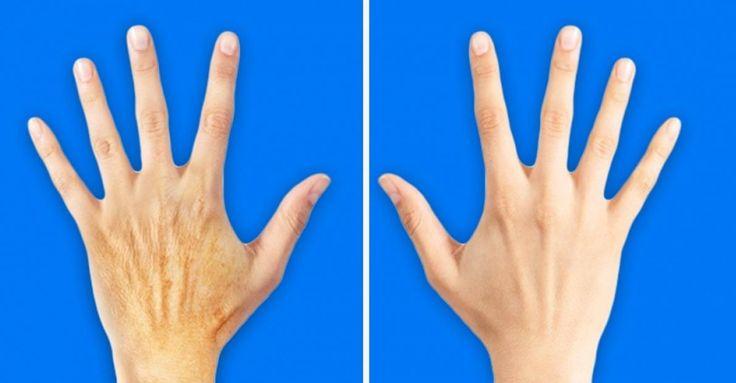 Befeuchte regelmäßig deine Hände © depositphotos Eine gute Handcreme ist so entscheidend wie Seife oder Shampoo, also wähle und benutze es. Trage die Creme nach Bedarf auf, aber nicht weniger als zweimal am Tag (morgens und abends). Wenn du trockene Haut hast, lege eine Tube Feuchtigkeitscreme in die Nähe der Spüle und wenden es jedes Mal nach dem Waschen deiner Hände an. Für die beste Wirkung, wende die Creme an, ziehe dir Baumwollhandschuhe an und gehe so zu Bett. Deine Nägel müssen auch…