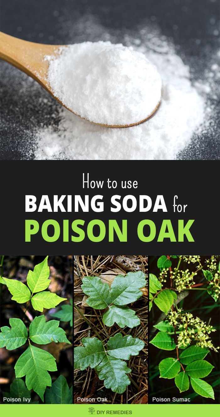 How to use Baking Soda for Poison Oak    Here we are explaining you some different ways of using baking soda for clearing poison oak rashes and itching on the skin. Choose the best and try this method regularly till you get rid of the problem.  #DIYRemedies #PoisonOak
