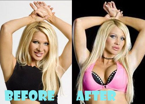 Jillian Hall Plastic Surgery Before and After Pictures