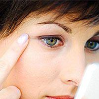 Гусиные лапки – это морщинки-лучики вокруг глаз, которые по своему виду как раз и напоминают самые настоящие гусиные лапки, что начинаются от глаз и расходятся лучиками до щек и висков, а то и