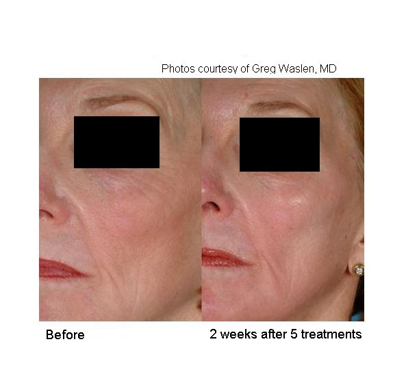 Before and after laser genesis to full face!