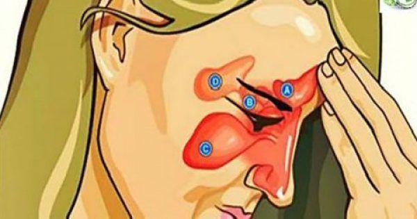 Καταπολεμήστε αποτελεσματικά την Ιγμορίτιδα, το Φλέγμα, την Γρίπη και την Ρινίτιδα με μόνο δύο συστατικά!