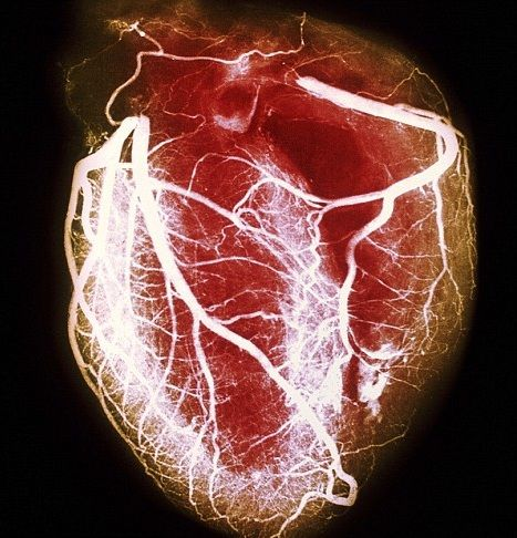 An X-ray showing the coronary arteries of the heart