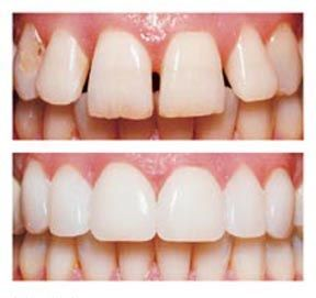 Dental veneers are custom-designed shells of tooth-like ceramic material that, when applied over the surface of a tooth, can cover worn tooth enamel, uneven tooth alignment or spacing and chips or cracks. (Before and After)